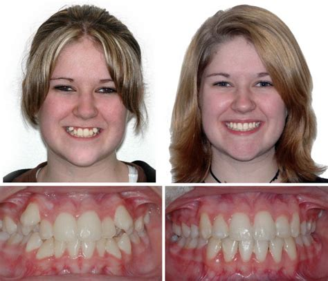 Braces Before and After   Children & Family Dentistry ...