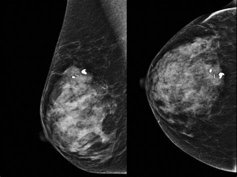 Breast Cyst; Breast Cysts