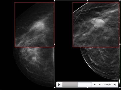 Breast cyst images