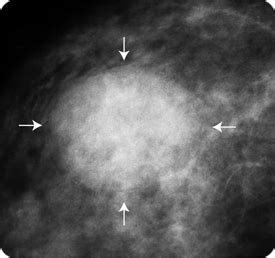 breast cysts and cancer