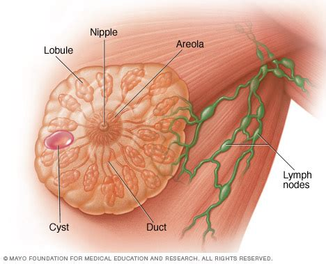 Breast cysts Disease Reference Guide - Drugs.com