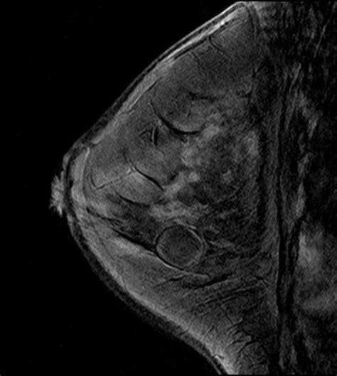 Breast Cysts   Media of human drug-disease information