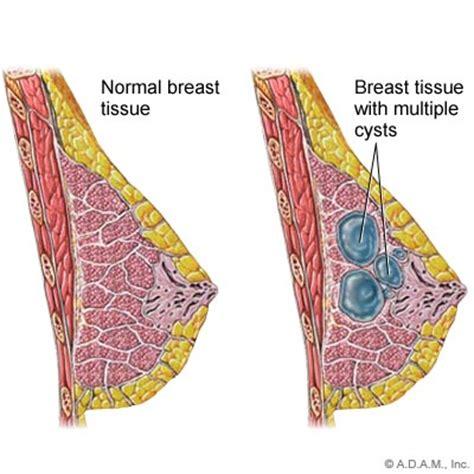 Breast cysts - Women Health Info Blog