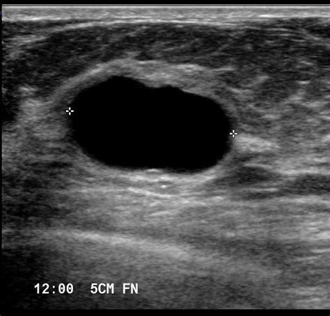 breast pathology ultrasound