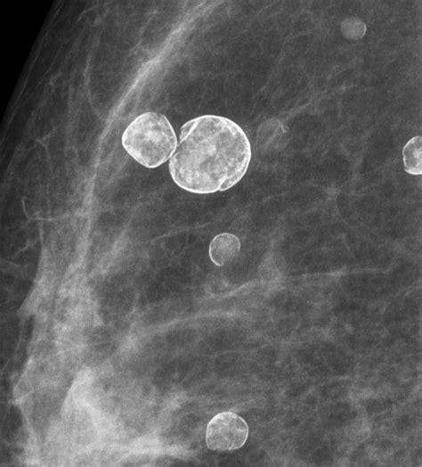 Breast Ultrasound: Breast Ultrasound Oil Cyst