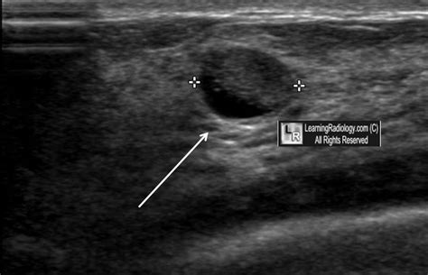 Breast Ultrasound: Cysts In Breast Ultrasound Images