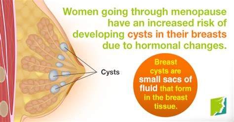 Breasts Cysts: Should I Be Worried?