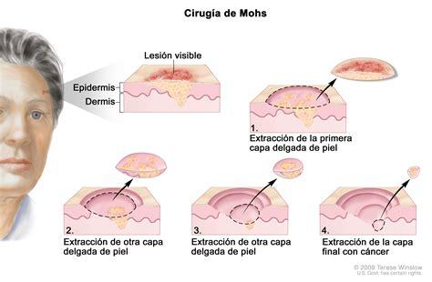 Cáncer de piel: Tratamiento (PDQ®)   Cure Today