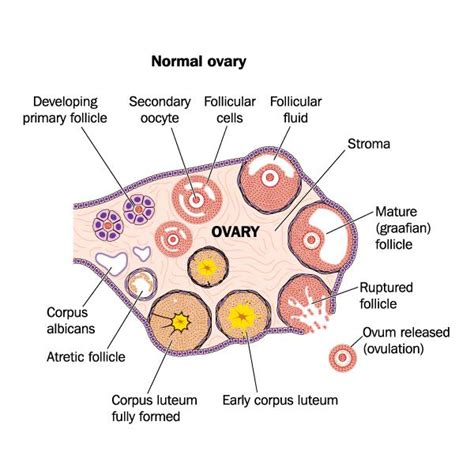 Can You Get Ovarian Cancer With No Ovaries - Doctor ...