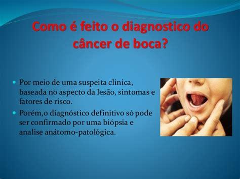 Cancer boca
