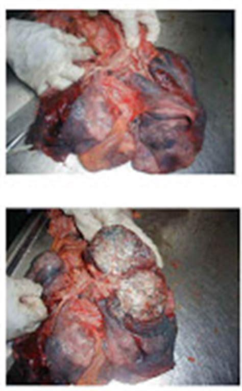 cáncer: cáncer de hígado