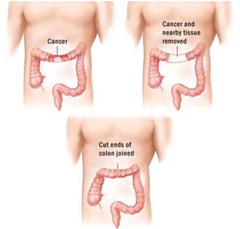 Cancer Chemotherapy: Cancer Chemotherapy Cost India
