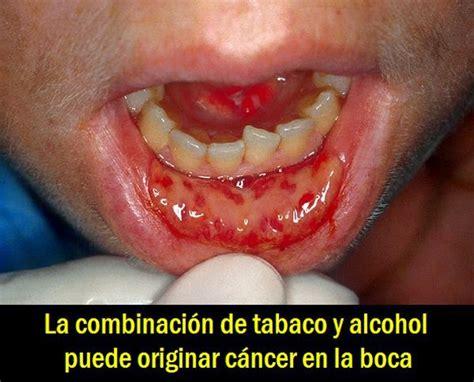 Cáncer de boca – Síntomas y tratamiento » Sintomas del Cancer
