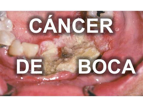 CÁNCER DE BOCA   YouTube