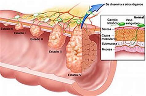 Cáncer de colon - Segunda Opinión Médica en Oncología