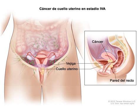 Cáncer de cuello uterino (PDQ®)—Versión para pacientes ...