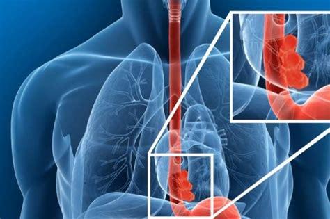 Cáncer de esófago es curable si se diagnostica a tiempo