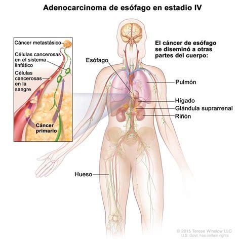 Cáncer de esófago (PDQ®)—Versión para pacientes - National ...