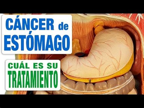 cancer de estomago remedio casero medicina natural urie ...