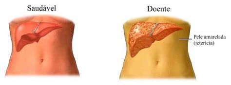 Câncer de fígado, sintomas e causas, metastático, tumor ...