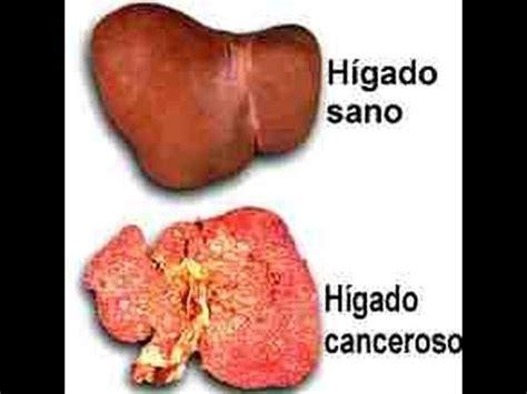 Cáncer de Hígado | Definición, tratamiento y prevención ...