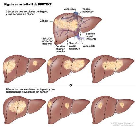 Cáncer de hígado infantil - National Cancer Institute