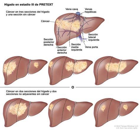 Cáncer de hígado infantil (PDQ®)—Versión para ...