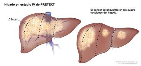 Cáncer de hígado infantil (PDQ®)—Versión para pacientes ...