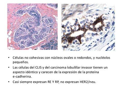 CANCER DE MAMA. Patologia