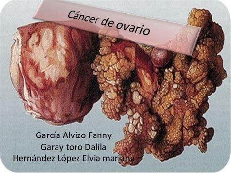 Cancer de Ovario 2009