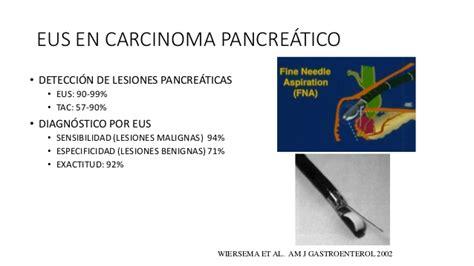Cancer de pancreas tnm