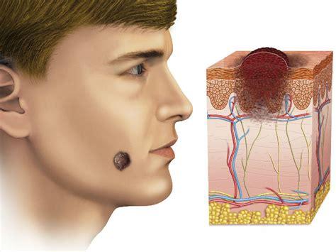 Cáncer de piel es más fatal en hombres | Salud180