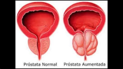 Cãncer de Próstata Sinais e Sintomas - Hiperplasia ...