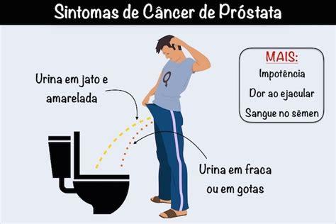 Câncer de próstata: sintomas e tratamento   Tua Saúde