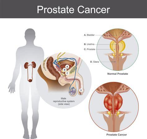 Cáncer de Próstata: Síntomas, factores de riesgo y tratamiento
