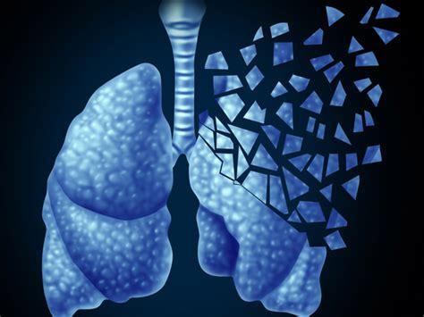 Cáncer de pulmón: lo que necesitas saber | Enfermedades y ...