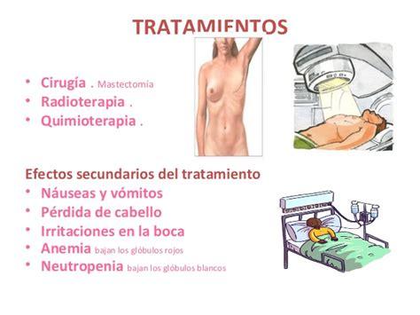 Cáncer en mama (etapa IV)