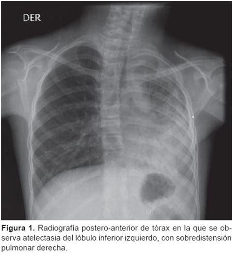 Cancer Pulmon Grado   LaceandPromises