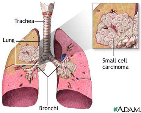 Cancer: Small Cell Carcinoma