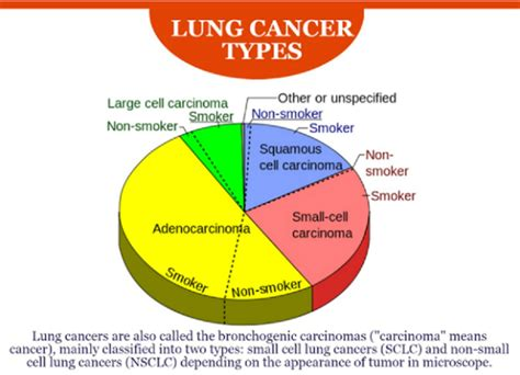 Cancer Types: Lung Cancer Types Smoking