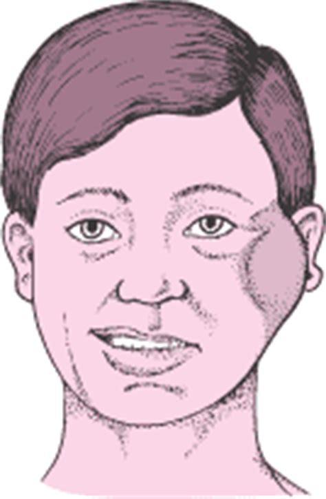 Cáncer y otros tumores de la boca