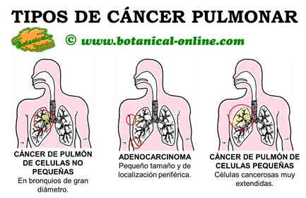 Características del cáncer de pulmón