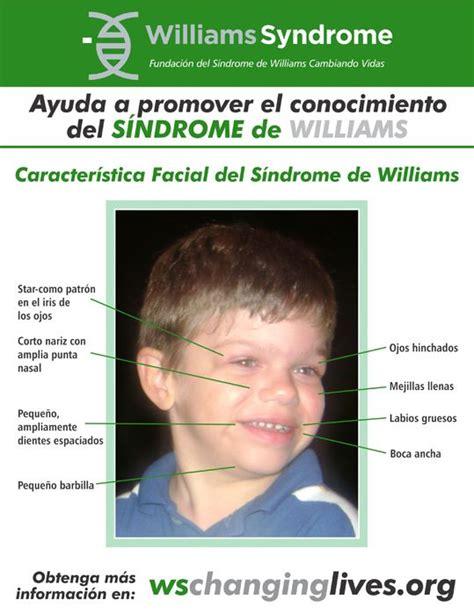 Características faciales infografía en Español. Visita www ...