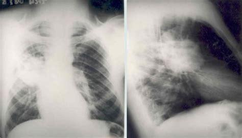 Carcinoma abscedado del pulmón: estudio prospectivo