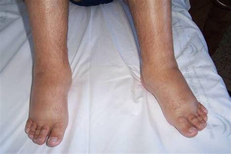 cardioguía: ¿Las piernas hinchadas pueden ser un aviso de ...