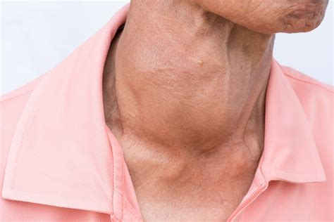 Causes Of Tightness In Throat And Ways To Deal With It ...