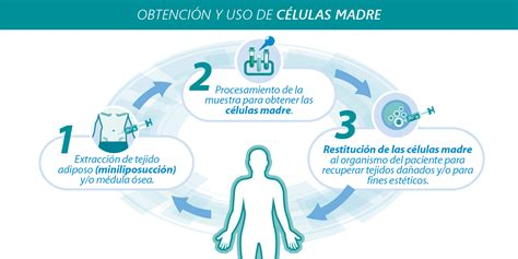 Células Madre | Clinica del Deporte – Dr. Esteban Santos