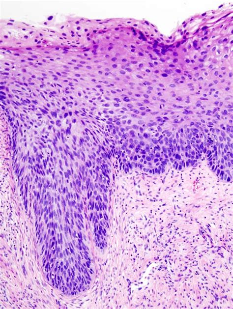 Cervical intraepithelial neoplasia   Wikiwand