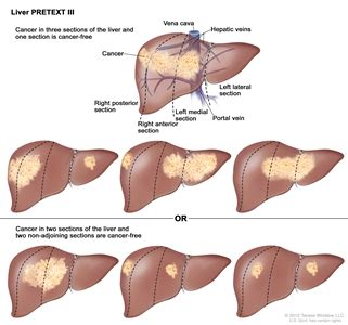 Childhood Liver Cancer Treatment (PDQ®): Treatment ...