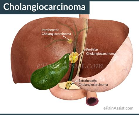 Cholangiocarcinoma Types Staging Diagnosis